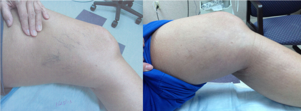Leg 2 Before and After 1
