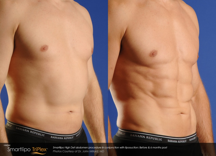 Smartlipo Triplex Abdomen Before & After