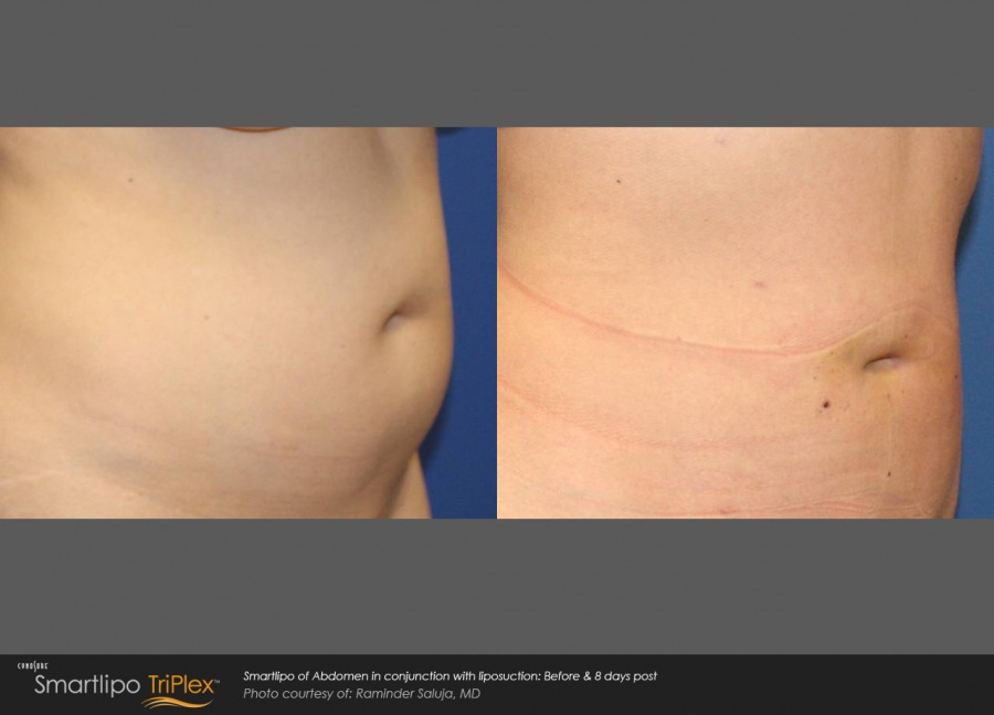 Smartlipo Abdomen Before & After